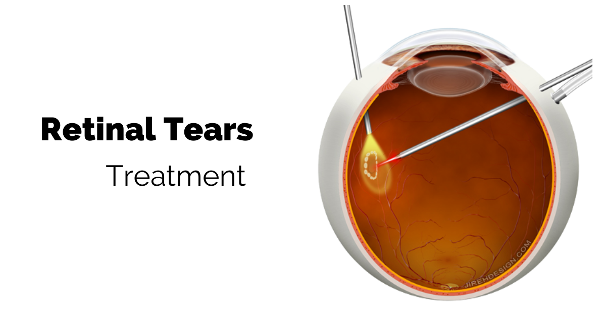 Treatment of Retinal Tears