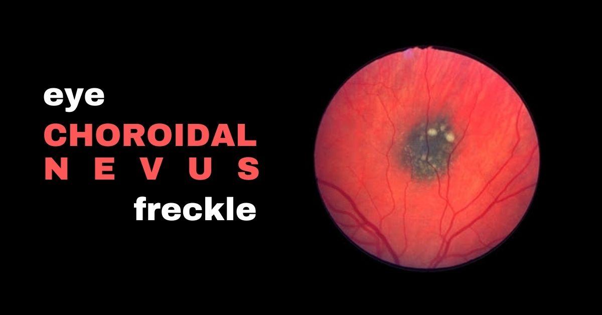 What is a Choroidal Nevus?