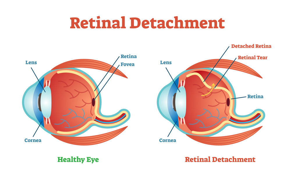 What is Scleral Buckle Eye Surgery