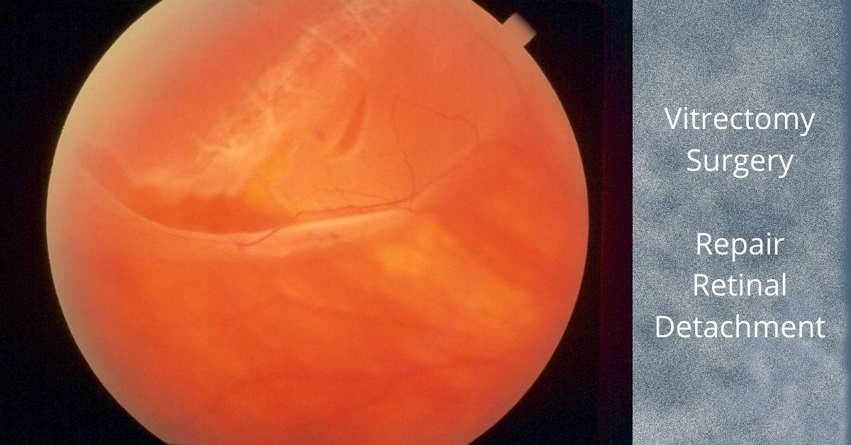 Vitrectomy for Retinal Detachment Repair